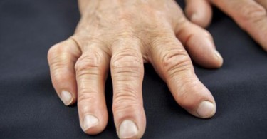a person suffering from arthritis - Dealing with arthritis