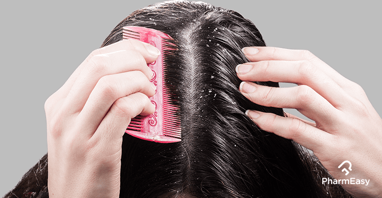 At remove dandruff home to naturally how 3 Ways