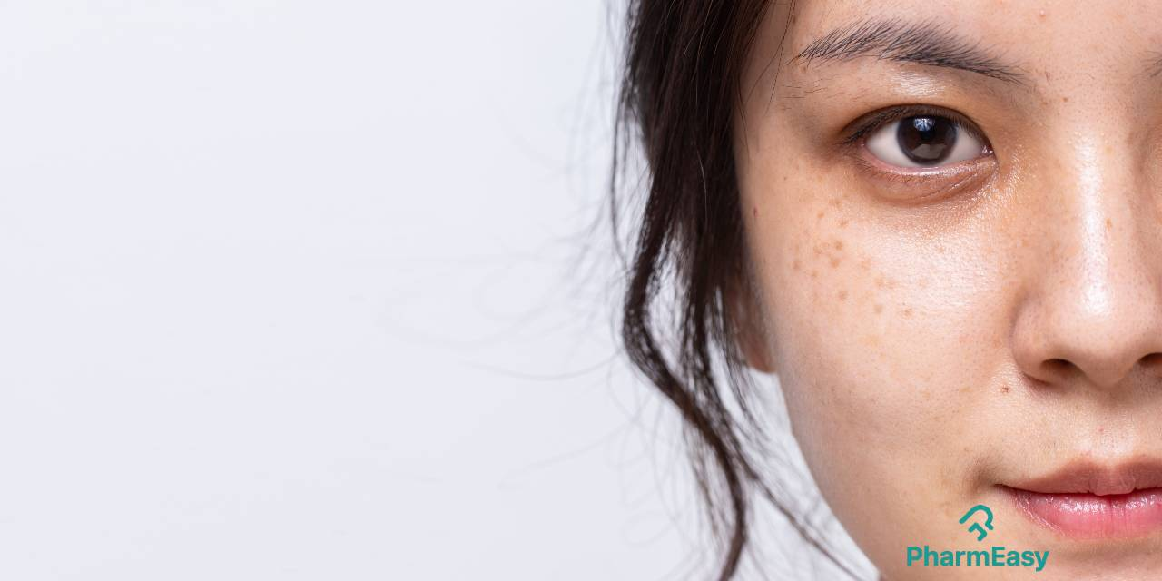 How to remove freckles and moles naturally